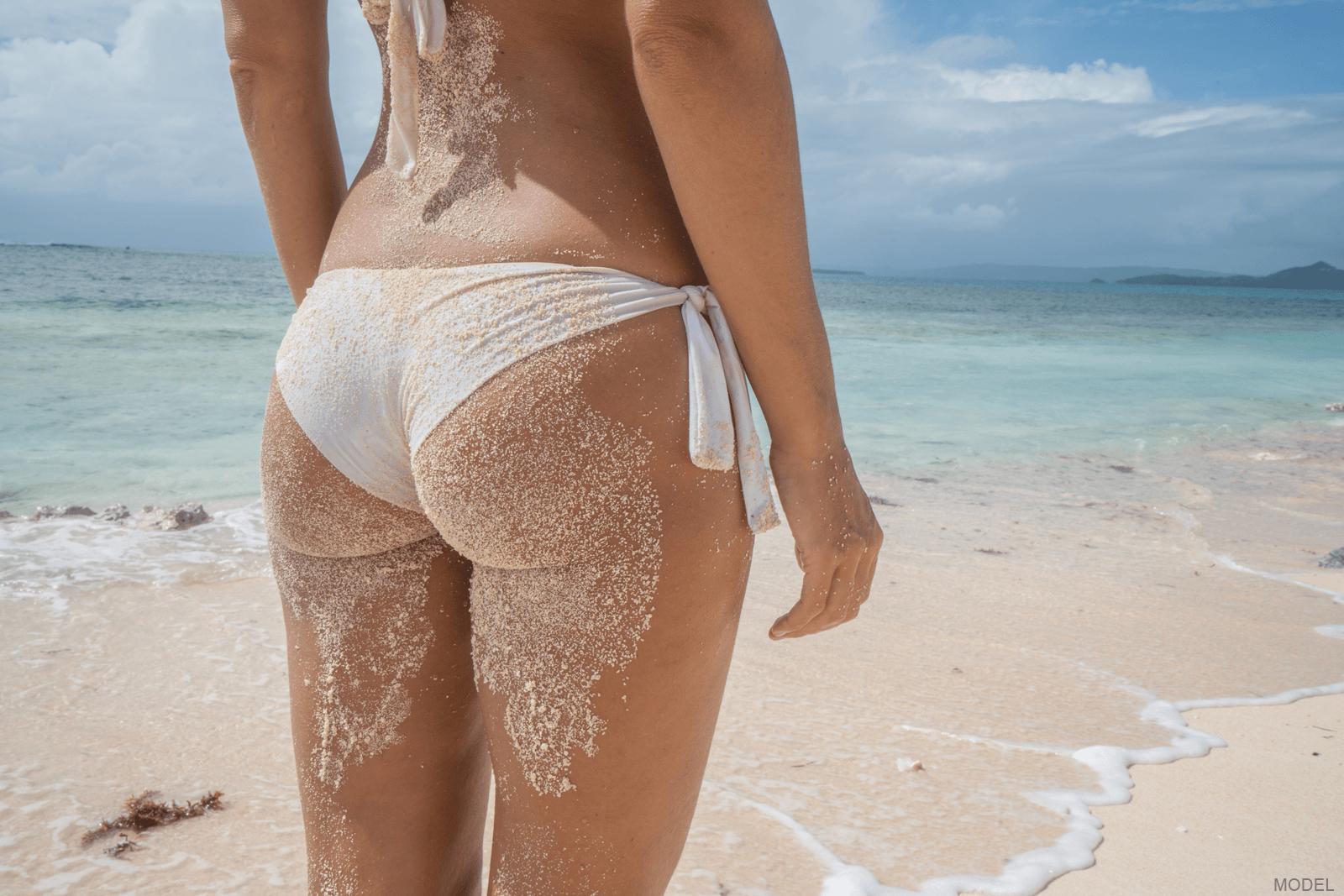 Woman's butt following butt augmentation