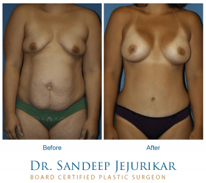 Before and after images of Dr. Jejurikar's mommy makeover patient.